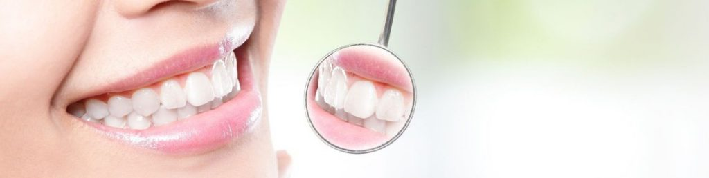 Orthodontie linguale – 75 – Paris – Paris 16